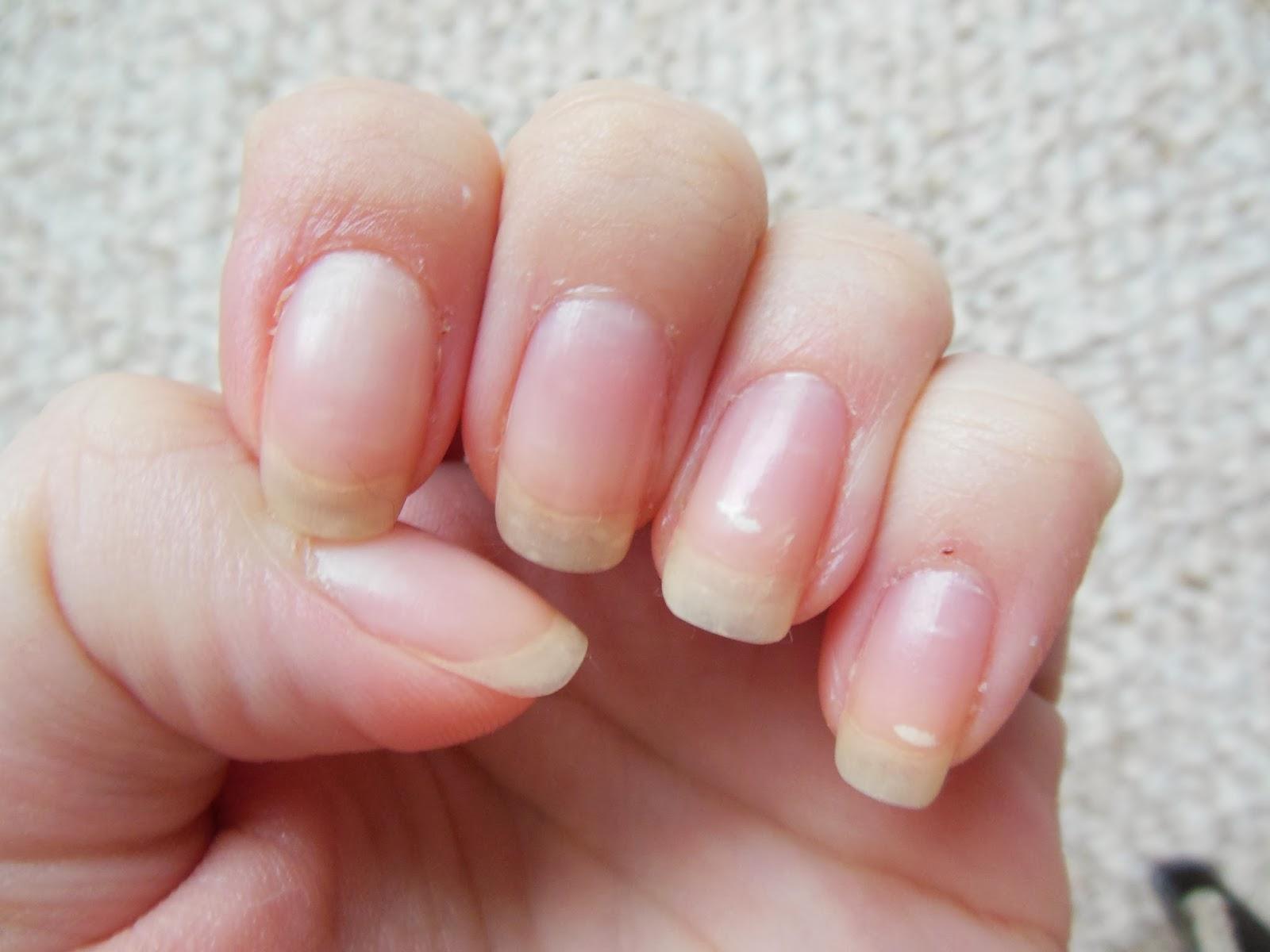 Prirodni Kosmetika Jak Na Krasne Dlouhe A Pevne Nehty