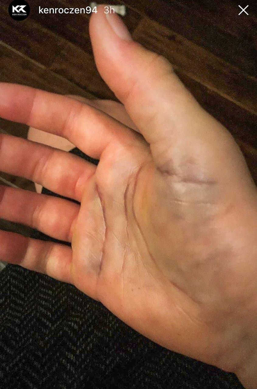 Ken Roczen Crashes Hard Zraneni Arm V San Diego
