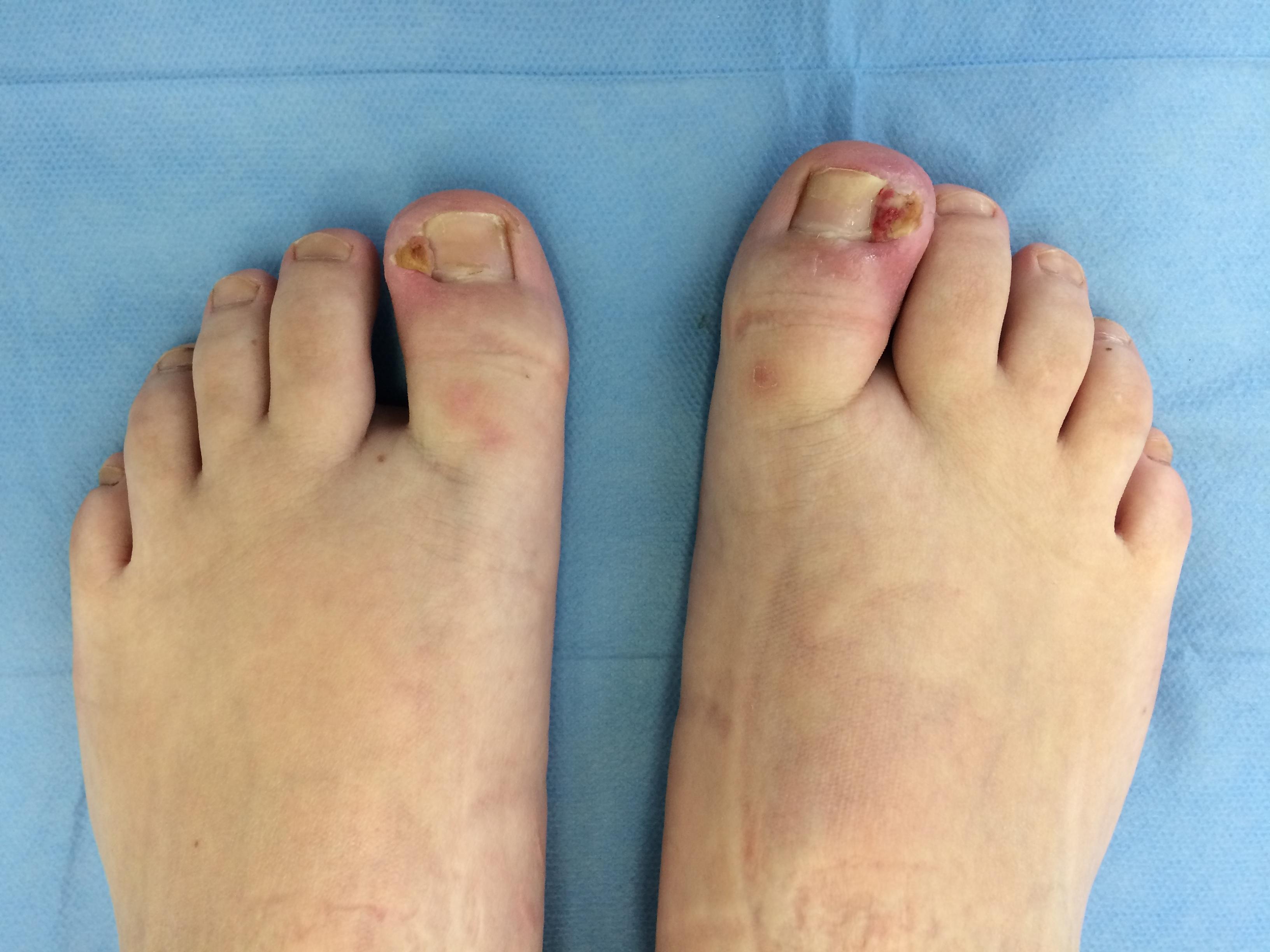 Zarostly Nehet Na Noze Chirurgie Nohy Ic Klinika Brno
